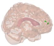 Brain mesh